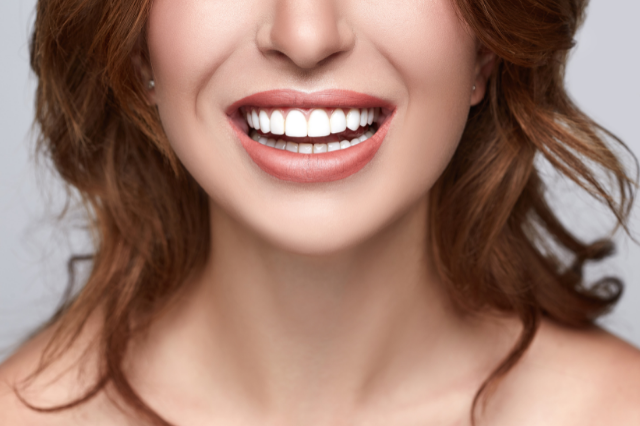 Close up of a woman smiling with bright white teeth