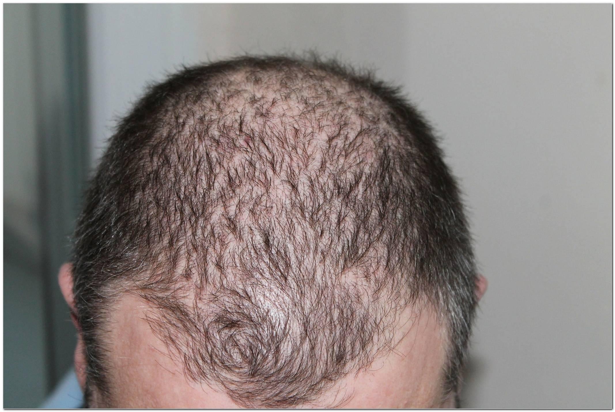 Frisuren Bei Diffusem Haarausfall