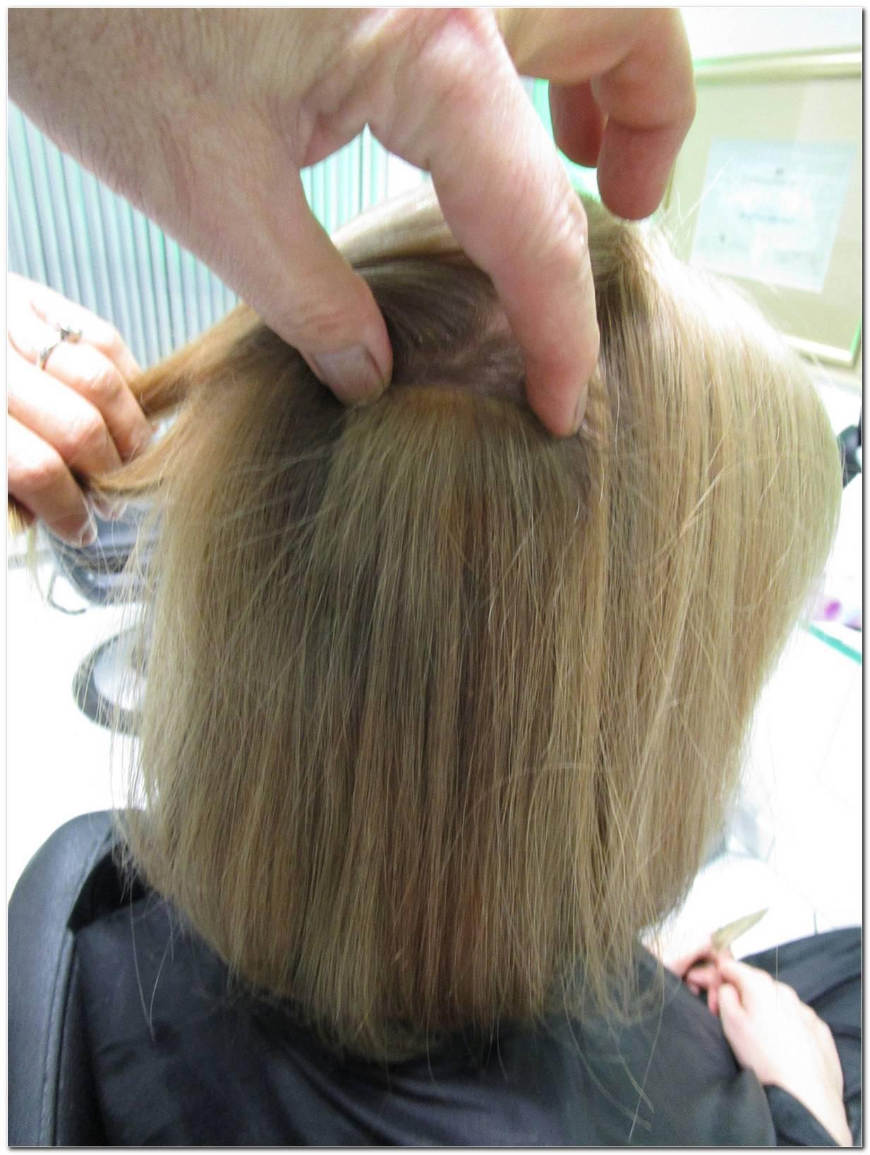 Frisuren Bei Kreisrundem Haarausfall
