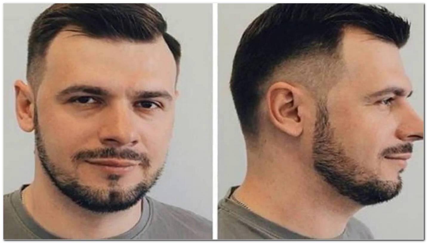 Frisuren FüR MäNner Mit Haarausfall