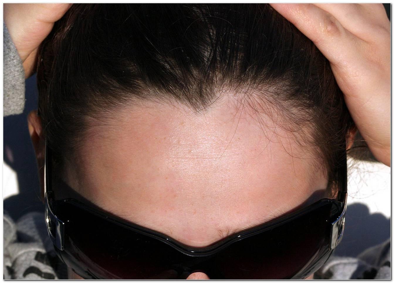 Frisuren HerzföRmiger Haaransatz