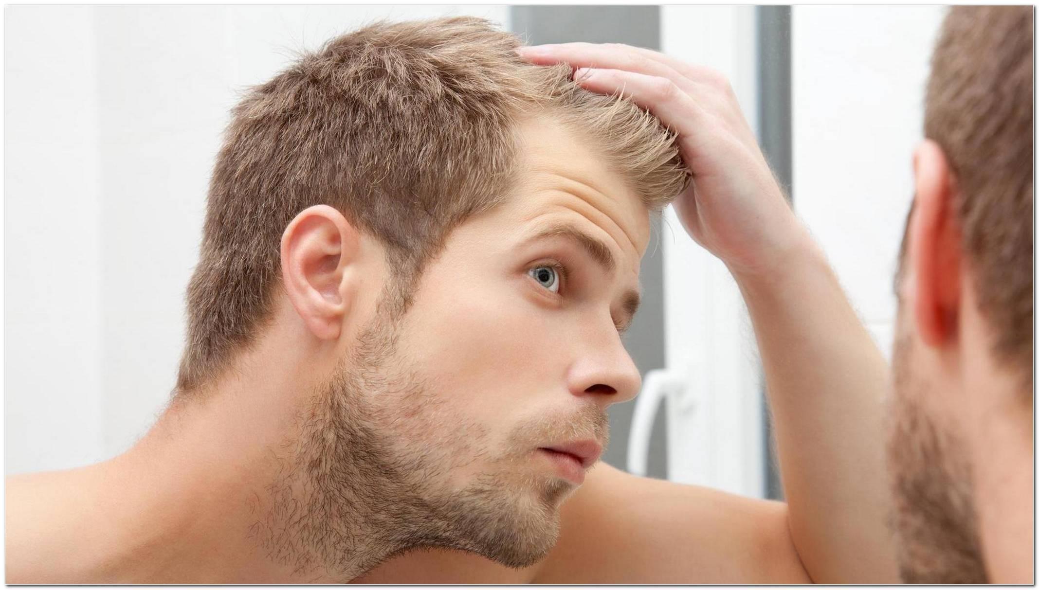 Vorteilhafte Frisuren Bei Haarausfall