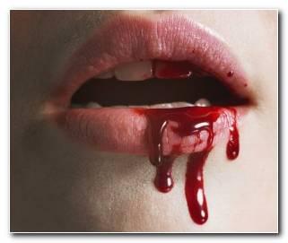 So?ar Con Sangrar Por La Boca